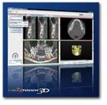 Dental Digital Tomographic Function & Panaromic x-ray